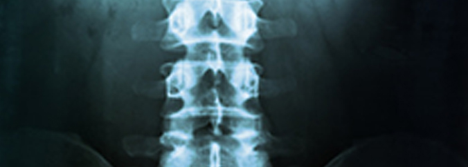osteopenia-and-osteoporosis-page